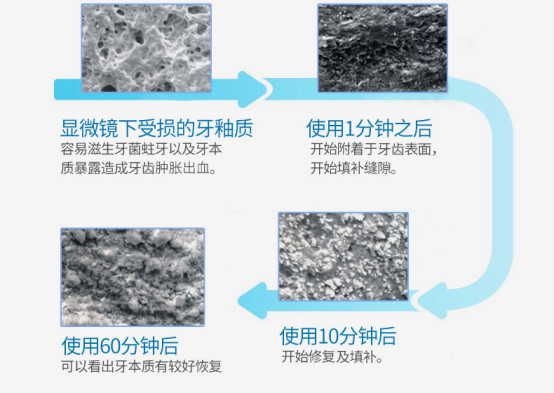 舒适雅纳米粒子修复牙膏 修复牙釉质拒绝牙过敏